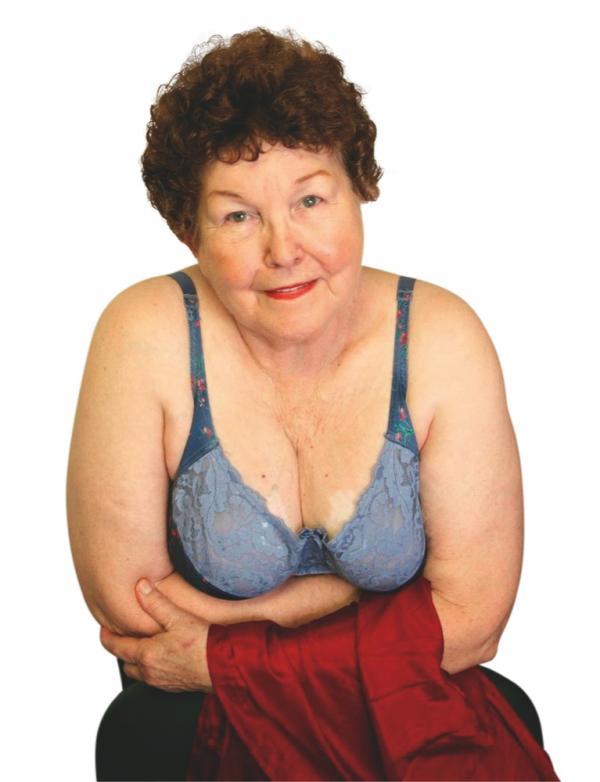 La Primera Mujer en tener Implantes de Senos