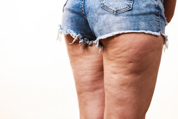 Celulitis y Cómo tratarla