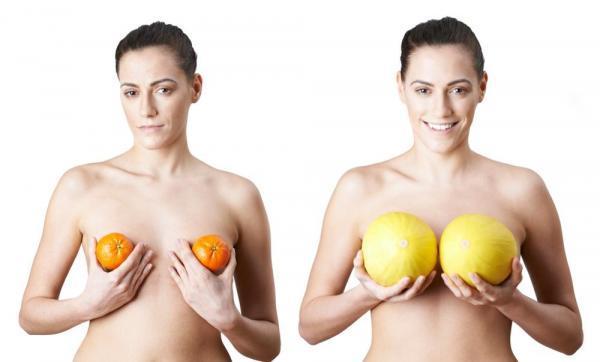 Curiosidades sobre la cirugía de senos.